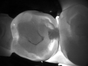 Find cavities quickly, painlessly, safely - what a cavity looks like