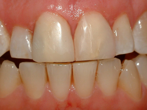 Goodman Dentistry smiles Staten Island - After Cosmetic Smile Makeover