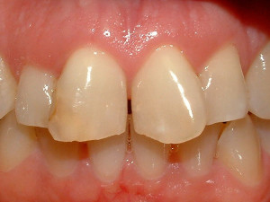 AK Dental Arts smiles Staten Island - Before Cosmetic Smile Makeover