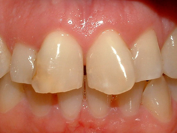 Goodman Dentistry smiles Staten Island - Before Cosmetic Smile Makeover