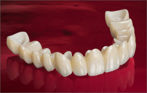 Zirconia Crowns - strong, affordable and great-looking!