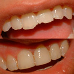 AK Dental Arts on Staten Island NY - help for rough edges or broken teeth - get a beautiful smile.