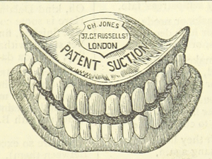 """Don't fall for dental fads advertising - smile makeovers, snap-on smiles, and dental implants. Good quality dental care can be """"conservative""""."""
