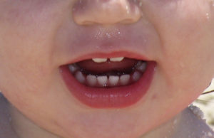 See a pediatric dentist about your baby's teeth, as taking care of baby teeth can help to ensure a lifetime of health and beauty for your child. Photo credit anitapeppers at https://morguefile.com/creative/anitapeppers/4/all